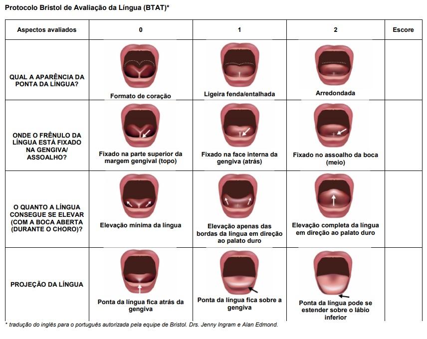 escore do protocolo bristol para anquiloglossia ou língua presa